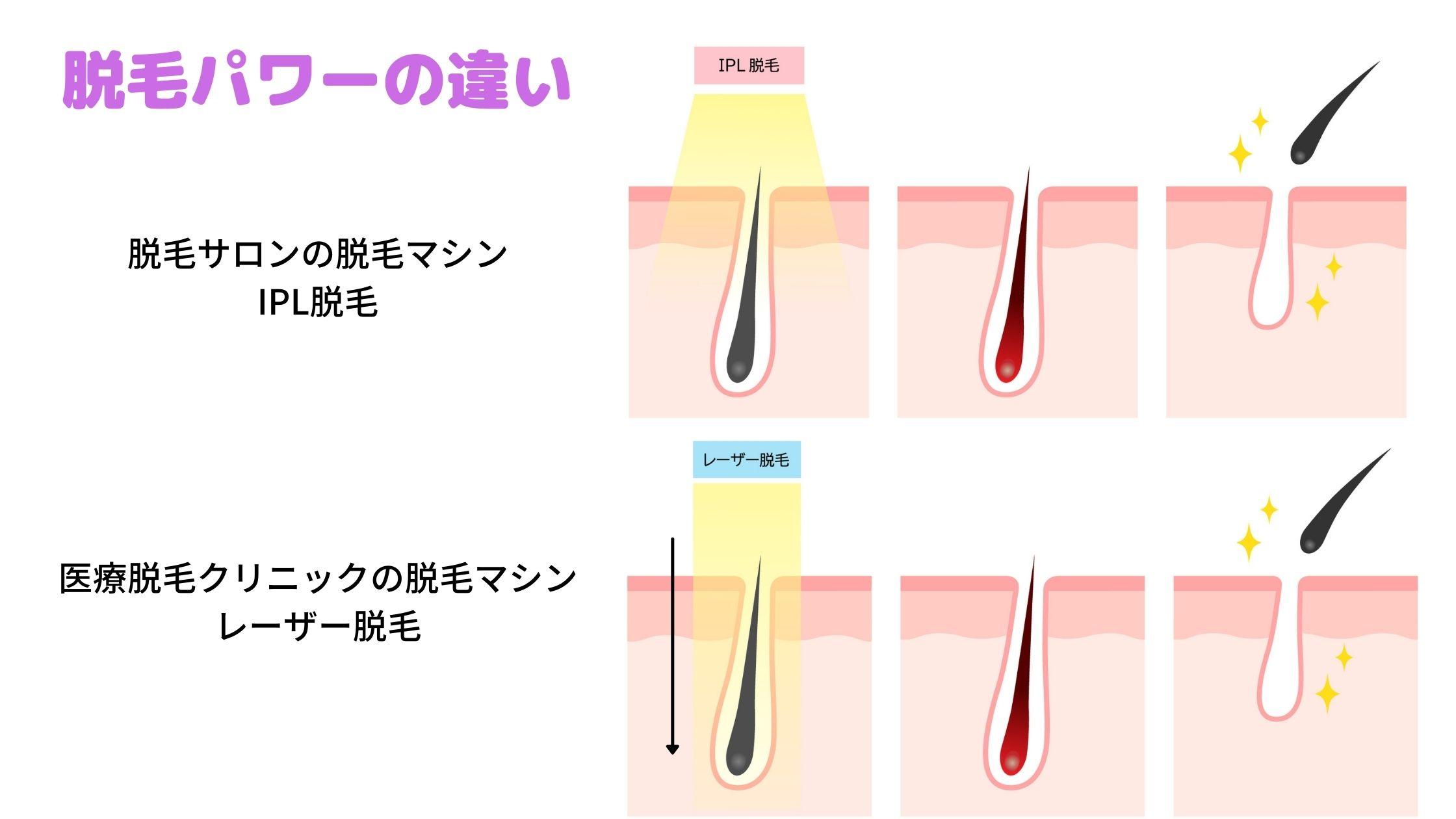 医療脱毛で効果を感じる回数や期間について足りない時に追加できる?産毛vioについても