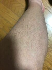 体毛を薄くするには?小中学生・高校生・男子におすすめの方法を紹介!